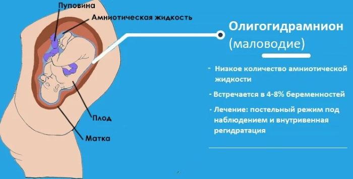 СЗРП при беременности. Что это такое в 30-38 недели, что делать