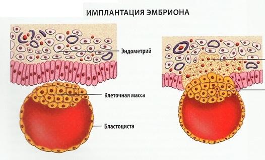 Имплантационное кровотечение. Фото, что это такое, у всех ли бывает, когда делать тест на беременность, на какой день происходит после переноса эмбрионов