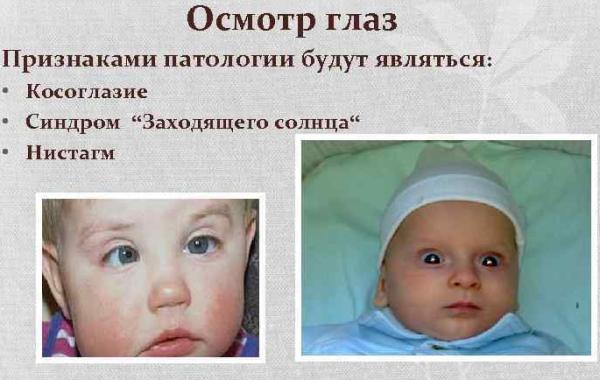 Зрение у новорожденных по месяцам, в первые дни. Таблица, описание, норма