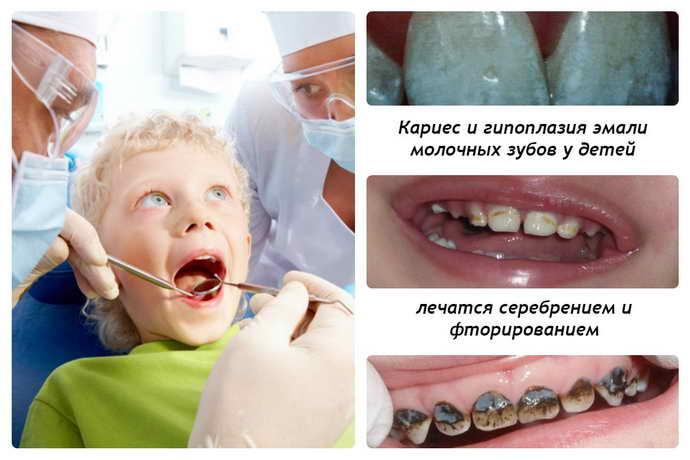 Гнилые (плохие) зубы у детей. Какие витамины пить, причины, что делать
