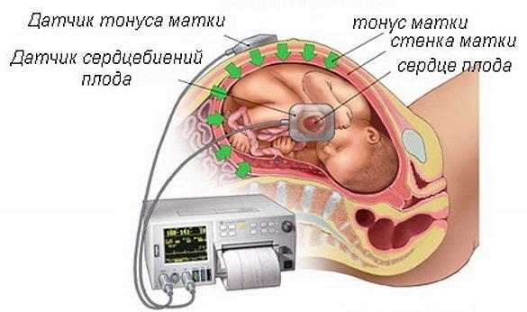 Твердый живот при беременности 1-2-3 триместр. Причины, что делать